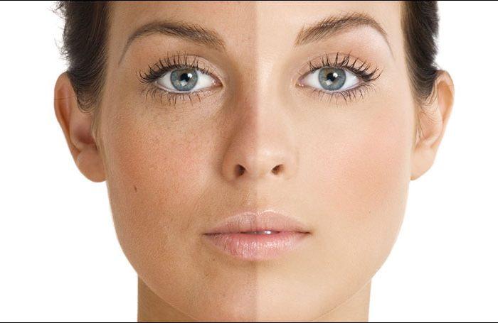 Top Ingredients for Fighting Hyperpigmentation