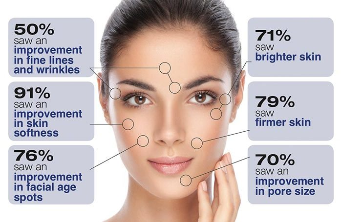 The 12 Types of Facial Aging