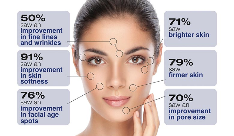 Types of Facial Aging